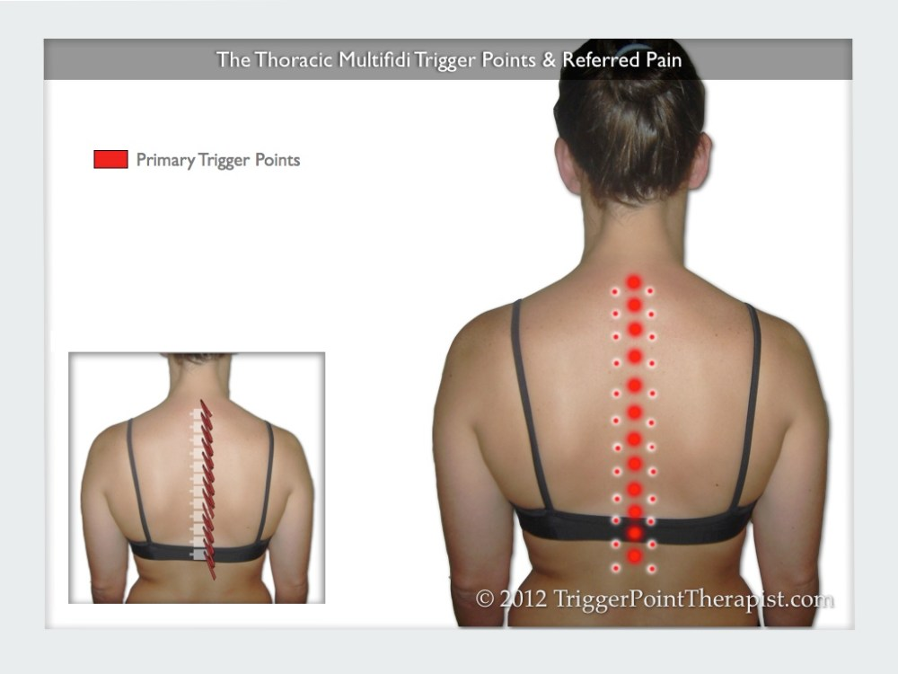 medium resolution of a diagram showing the thoracic multifidus trigger points and their referred pain