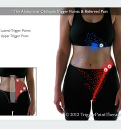 a diagram of the abdominal oblique trigger points and their referred pain [ 1024 x 768 Pixel ]
