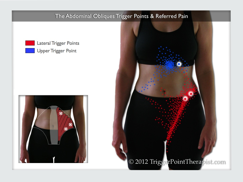 hight resolution of a diagram of the abdominal oblique trigger points and their referred pain