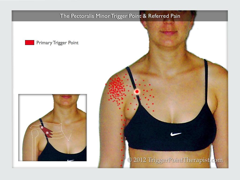 hight resolution of pec minor trigger point