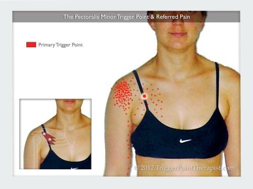 small resolution of pec minor trigger point