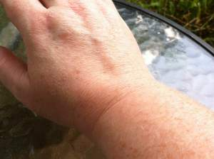 Here is my wrist with the Arnica Cream rubbed in. It doesn't look greasy because it's not.