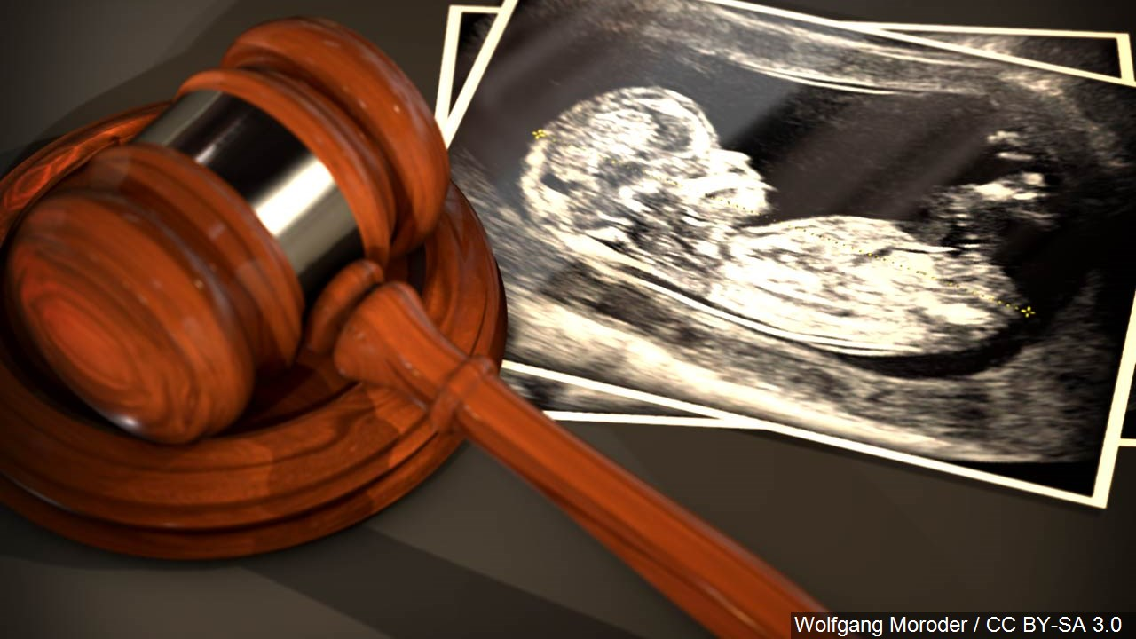 abortion gavel mgn_1556223454958.jpg.jpg