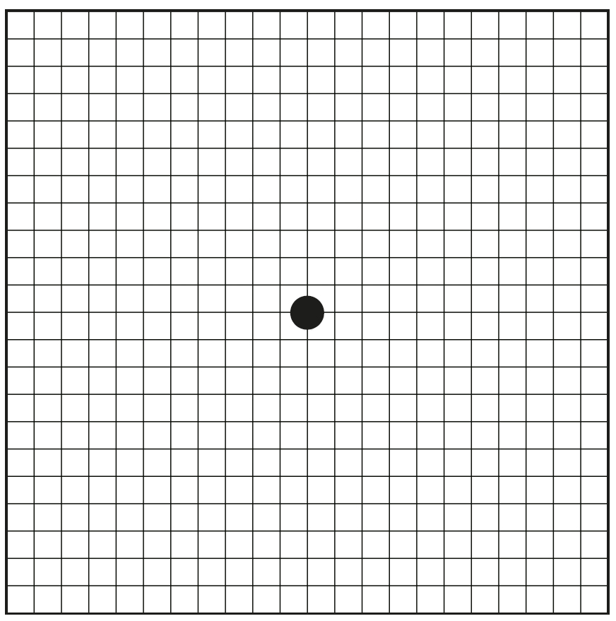 image relating to Printable Amsler Grid referred to as amsler grid eye attempt
