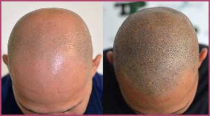 micropigmentazione capelli