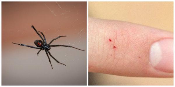 Black Widow Bite