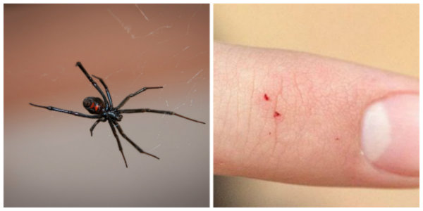 How to Identify a Spider Bite and Treat It - TruePrepper - photo#34