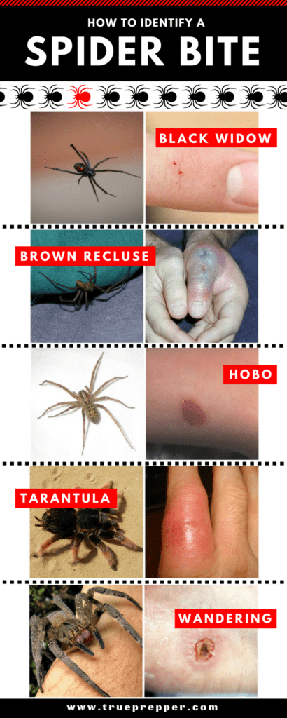 How to Identify a Spider Bite and Treat It  TruePrepper