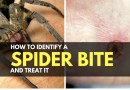 How to Identify a Spider Bite and Treat It