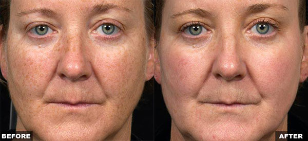 Fraxel Dual 1550/1927 Skin Care in Raleigh, Wilson, NC