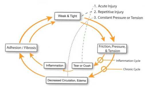 active release pain cycle