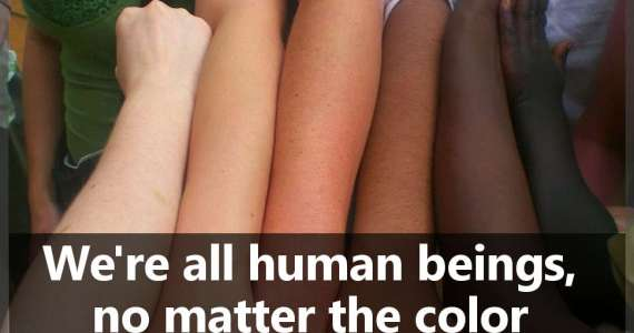 We're all human beings, no matter the color we were born with.