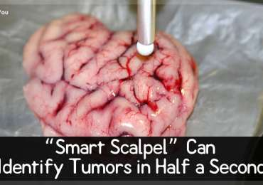 """Smart Scalpel"" Can Identify Tumors in Half a Second"