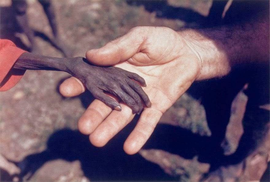 30 of the most powerful images of all time - Starving boy and missionary