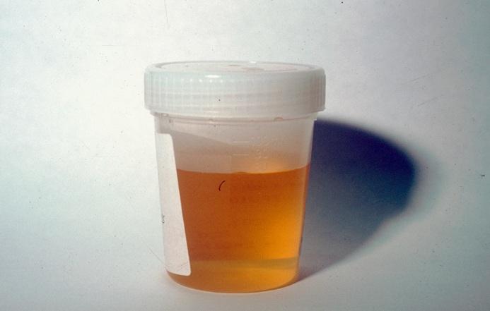 Dark yellow-orange urine