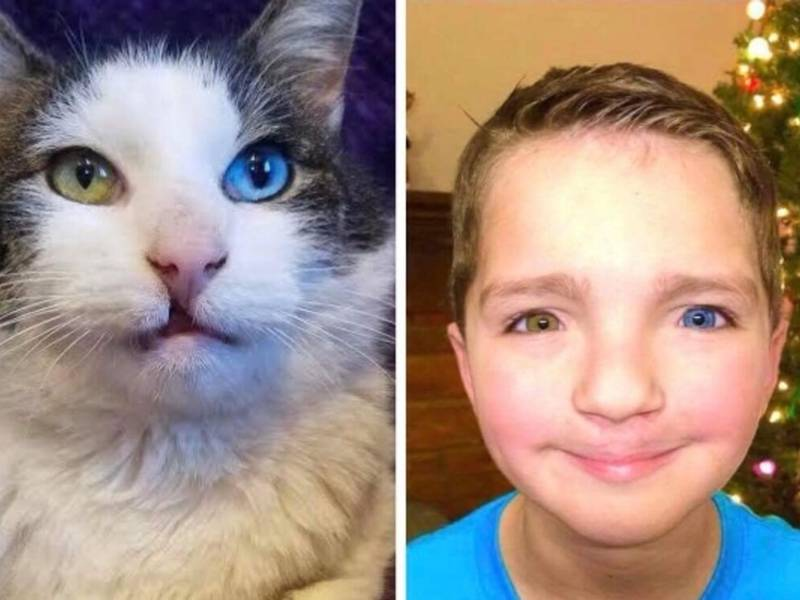 Bullied Boy Adopts Rescue Cat with Same Rare Eye Condition and Cleft Lip - 3