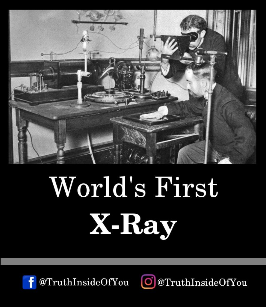20. World's First X-Ray