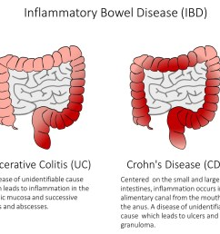 figure 1 ibd is a group of diseases which cause inflammation and ulcers in the alimentary canal as well as symptoms such as bleeding diarrhea  [ 1300 x 1161 Pixel ]