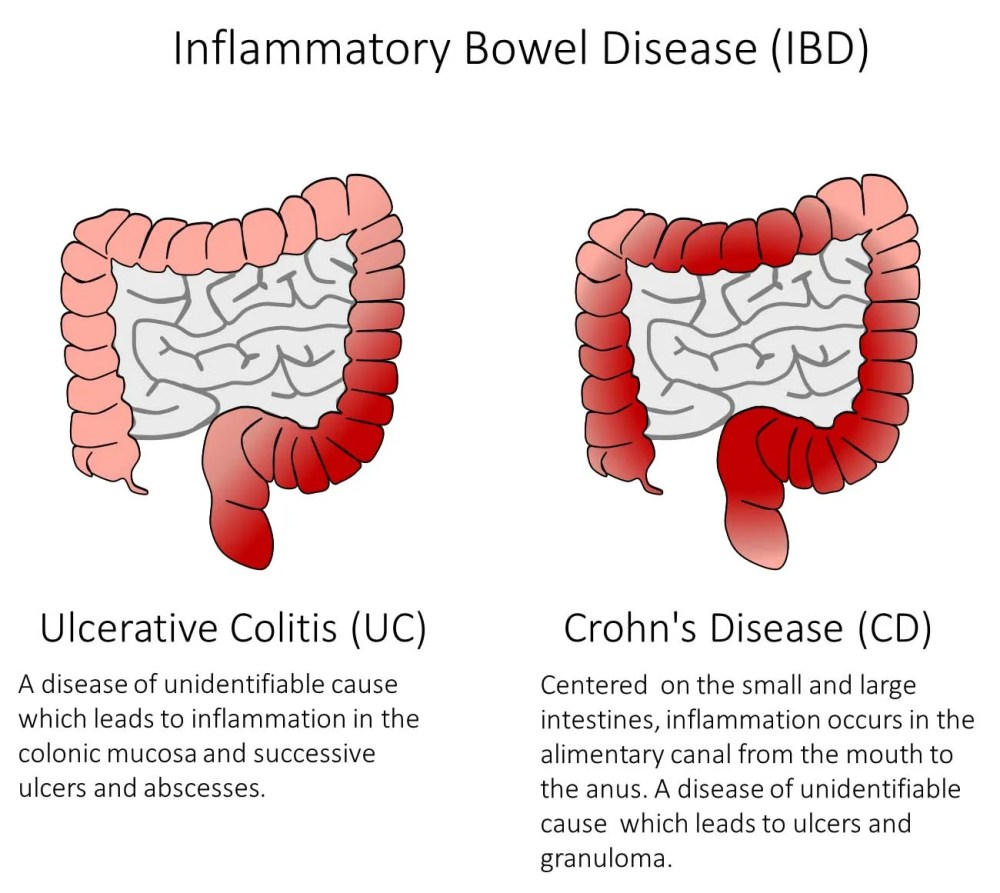 medium resolution of figure 1 ibd is a group of diseases which cause inflammation and ulcers in the alimentary canal as well as symptoms such as bleeding diarrhea