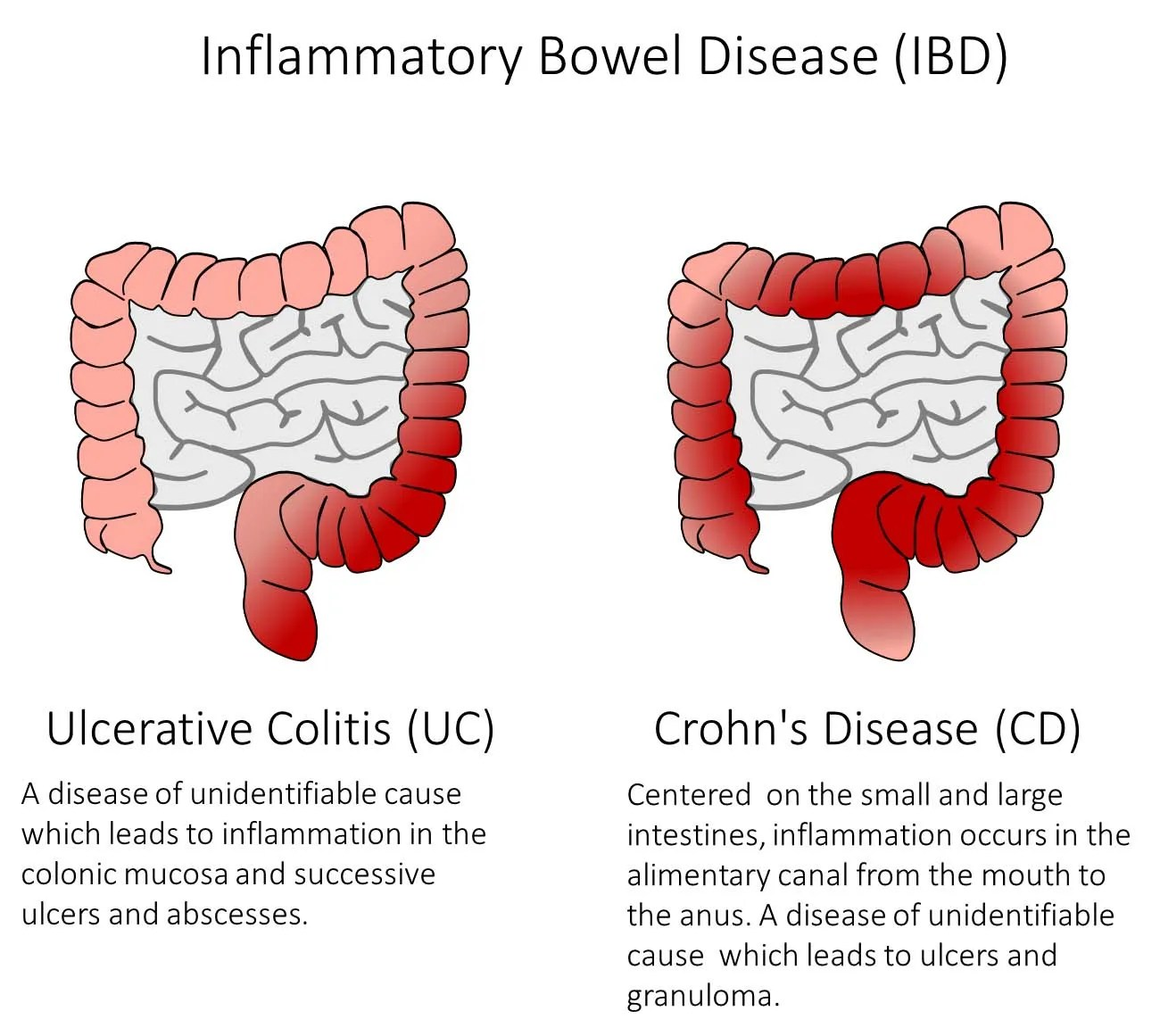 hight resolution of figure 1 ibd is a group of diseases which cause inflammation and ulcers in the alimentary canal as well as symptoms such as bleeding diarrhea