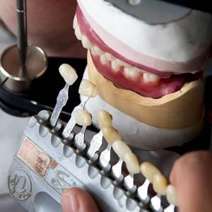 Tandtechniek van Beijsterveldt