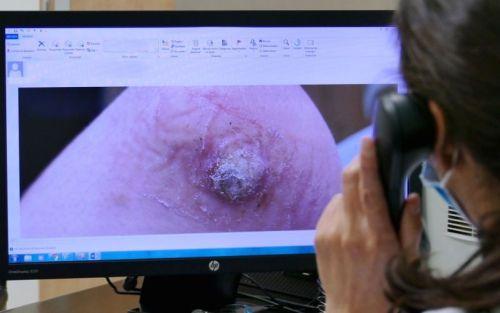 ¿En qué consiste la teledermatología?