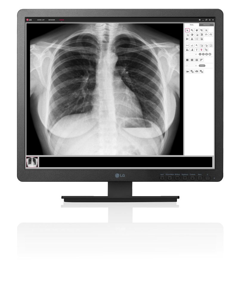 Clinical-Review-Monitor-model-19HK312C-