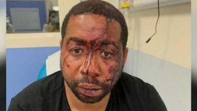 فيديو يوثّق لحظة الاعتداء الوحشي من الشرطة الفرنسية على موسيقي إفريقي