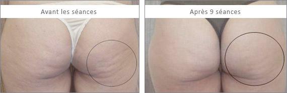 Ultrashape Liposuccion Sans Chirurgie Liposculpture