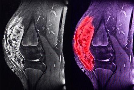 Bone Cancer (Osteosarcoma)