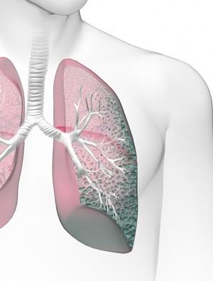 Akciğer Sertleşmesi (Idiopatik Pulmoner Fibrozis (IPF))