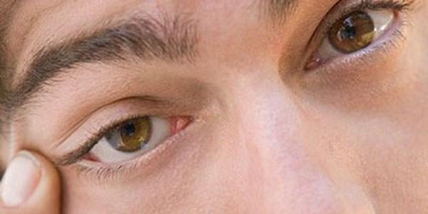 Göz Kapağı Bozuklukları