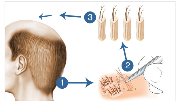 Hair Transplant Stages Operation