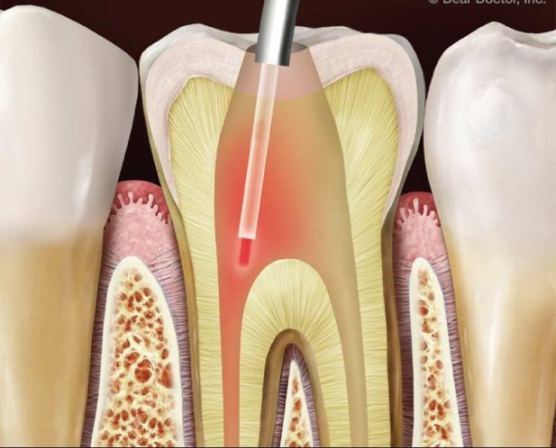 Laser-Assisted Dentistry