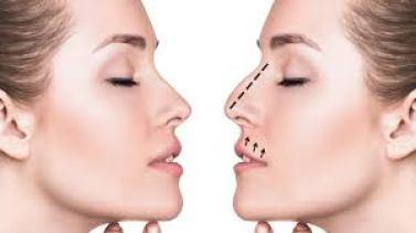 Nose Aesthetics