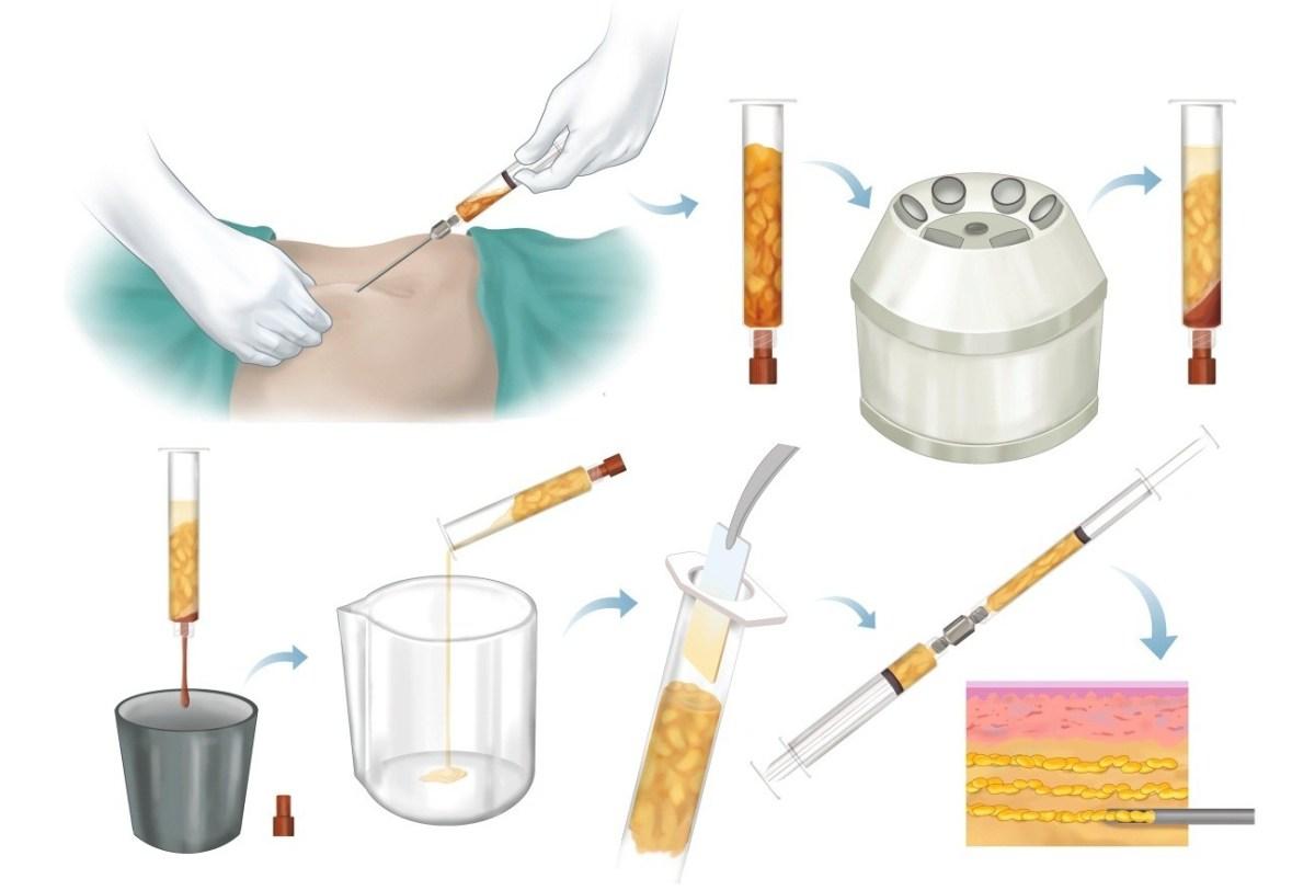 Yağ Transferi ve Yağ Enjeksiyonu