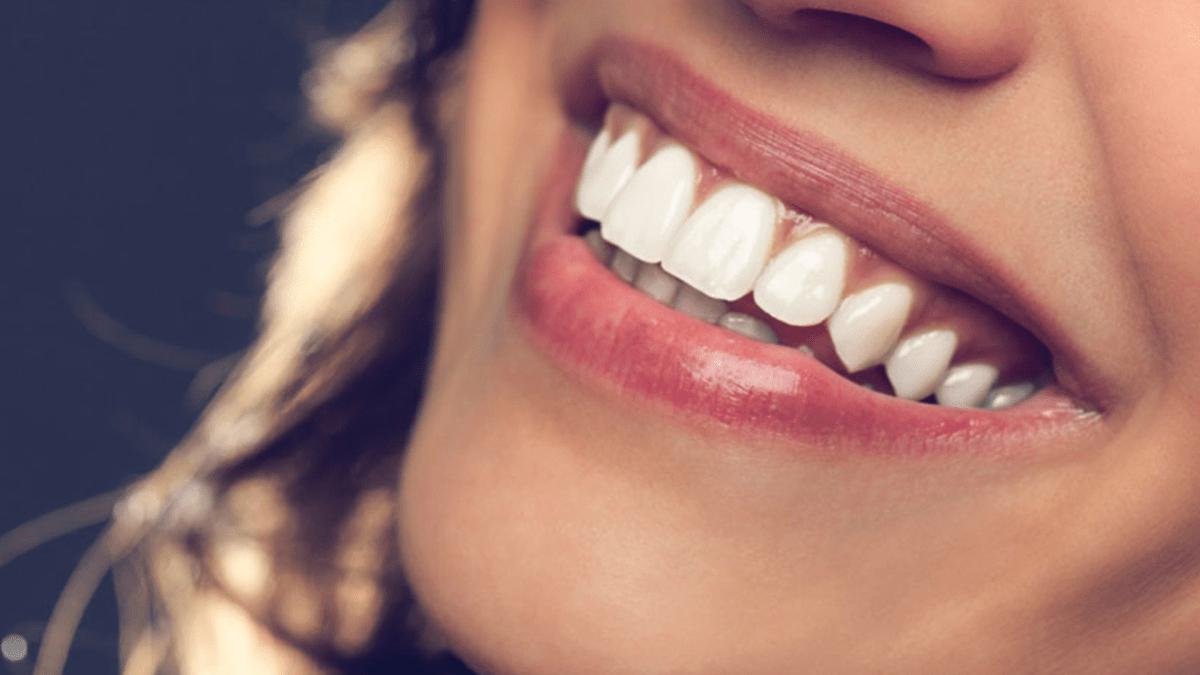 Smile Design (Hollywood Smile)