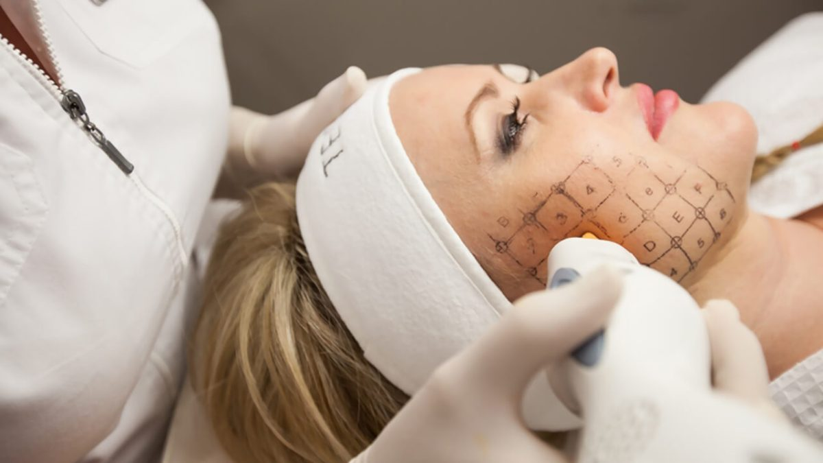 Thermage Treatment