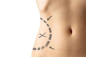 Confira os melhores procedimentos para acabar com a barriguinha – com Dra. Suzy Vieira