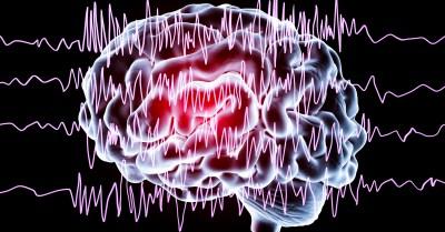 Efeitos da eplepsia no cérebro