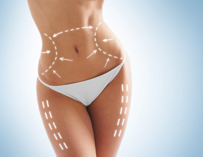 10 Dúvidas sobre a cirurgia plástica por Dr. Mário Farinazzo