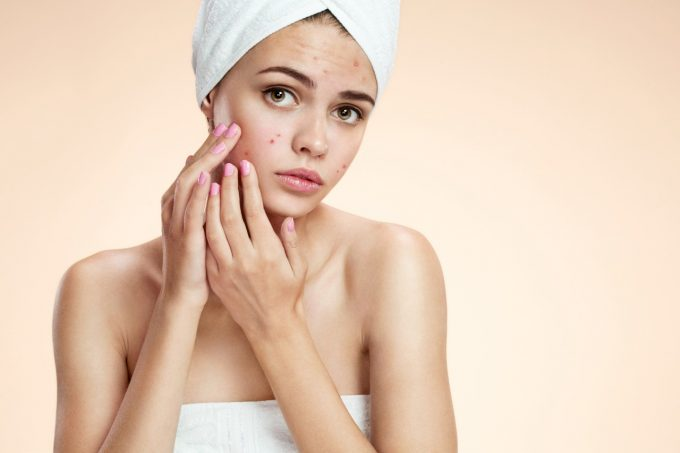 O aumento da acne na quarentena pode levar a quadros de Ansiedade e Depressão