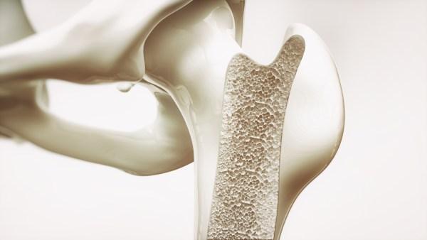 Tv Catia Fonseca sáude Osteoporose