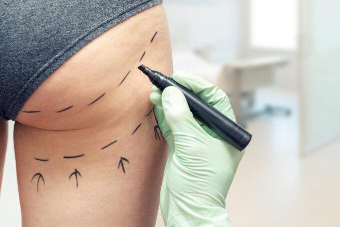 Implante de bumbum por Dr. Mario Farinazzo