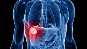 Como hepatites são transmitidas por Dra. Raquel Muarrek