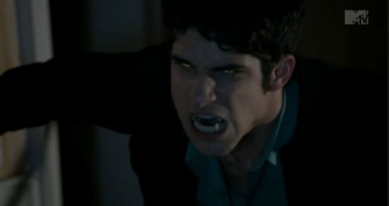"""Teen Wolf (2012) Season 2 Episode 9 """"Party Guessed """""""