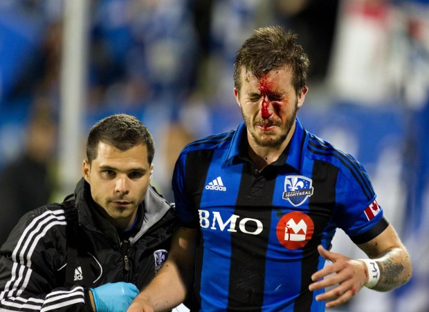 MONTREAL, QUE.: MAY 15, 2013-- Montreal Impact Jeb Brovsky is helped off the field after colliding with Vancouver Whitecaps Jordan Harvey during game one of the two-game Canadian Championship soccer series, in Montreal on Wednesday May 15, 2013. (Allen McInnis / THE GAZETTE) ORG XMIT: 46756 OPTIONAL Caption: Minnesota United FC midfielder Jeb Brovsky shattered his nose when he was playing for Major League Soccer's Montreal Impact during a match against the Vancouver Whitecaps in Montreal on May 13, 2013. Photo courtesy of Montreal Gazette: Allen McInnis.