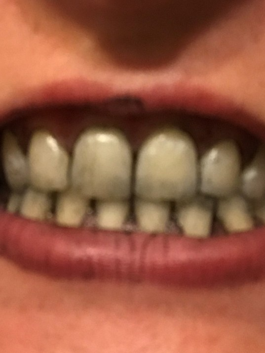 I Tried That Black Charcoal Tooth Whitener So You Don't Have To