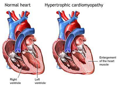 A normal heart and one with Hypertophic Cardiomyopathy
