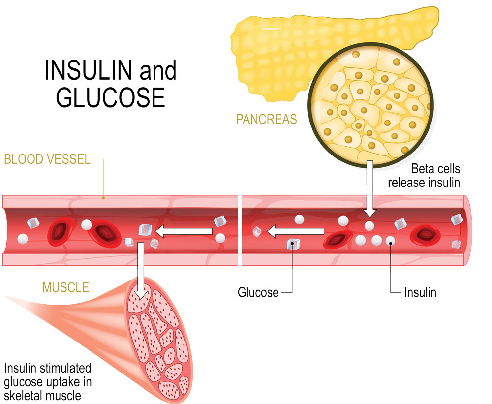 rep gower diet insulin infographic 1000px 1